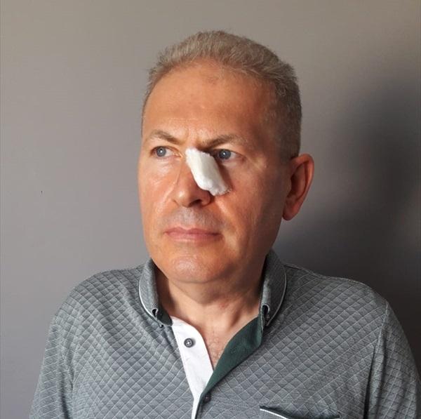 Adana'da avukat ve eşine yumruklu saldırı